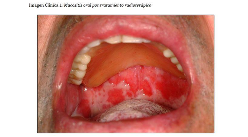 Manejo de las complicaciones orales por tratamiento radioterápico: ensayo clínico aleatorizado y análisis crítico