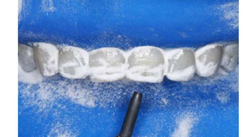 Elaboración de un video tutorial de aislamiento absoluto para operatoria dental dirigido a los estudiantes de la facultad de odontología de la UDLA 2016