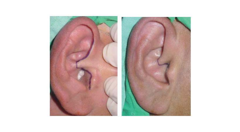 Abordaje endaural modifi cado para la articulación temporomandibular: 20 años de experiencia. Descripción de la técnica quirúrgica