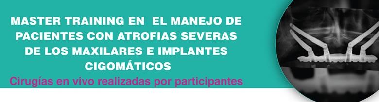 Master Training en Manejo de Pacientes con Atrofia Severas de LosMaxilares e Implantes Cigomáticos