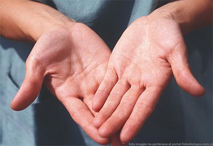 Testimonio real sobre la importancia de proteger sus manos.