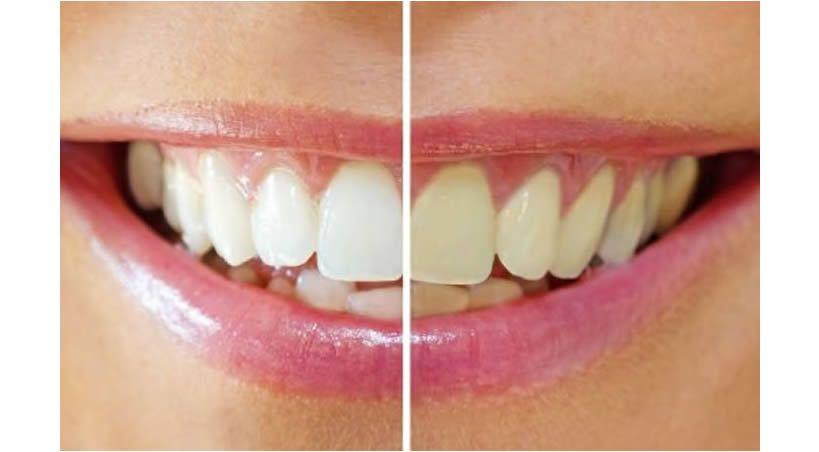 ¿Cuáles son los límites del blanqueamiento dental?