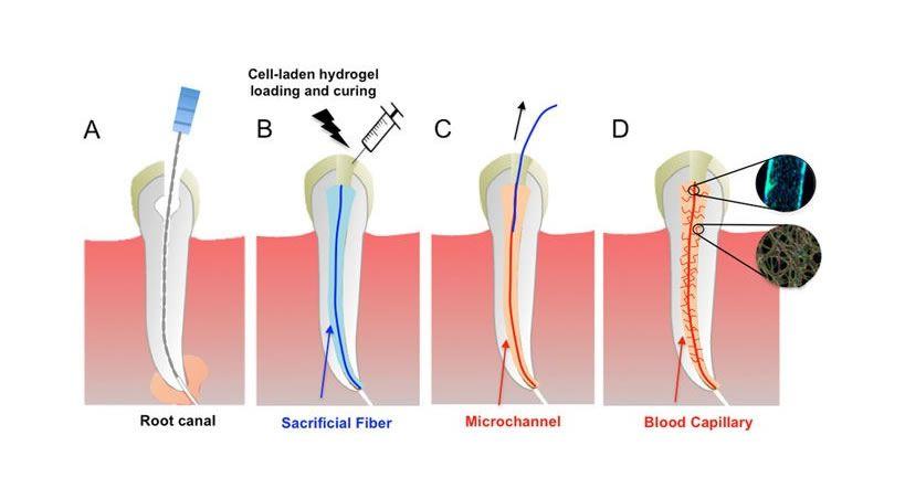 Crean vasos sanguíneos como posible alternativa al tratamiento de conducto
