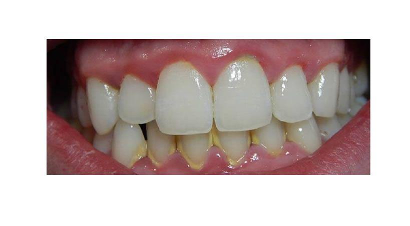 Gingivitis, una enfermedad que genera perdida dental