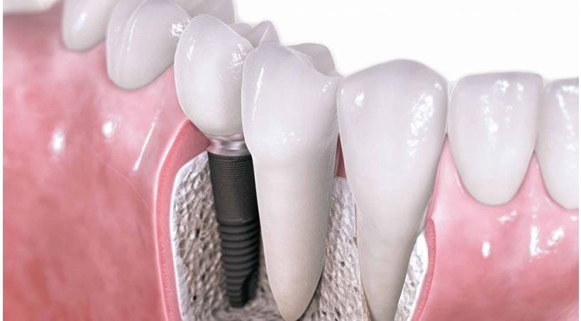 Una nueva tecnología mejora los recubrimientos de implantes dentales