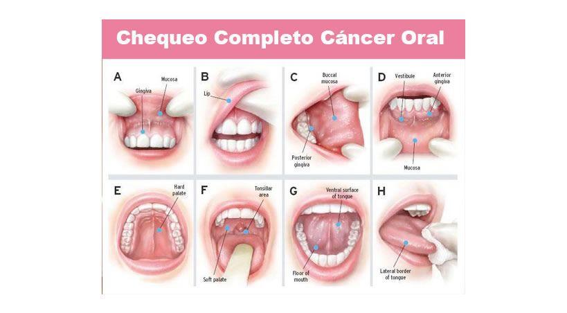Euskadi duplica la tasa europea de cáncer oral