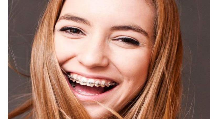 Ortodoncia, tipos y fases a tener en cuenta antes de realizarse este tratamiento