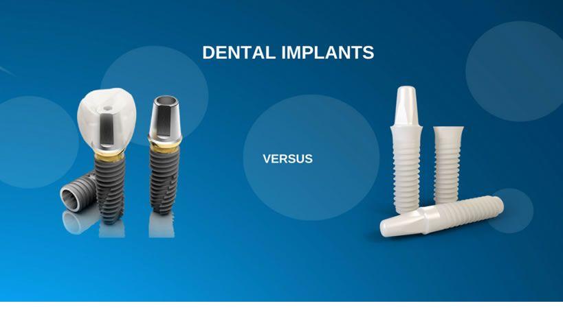 Implantes Dentales : Titanio vs. Zirconio