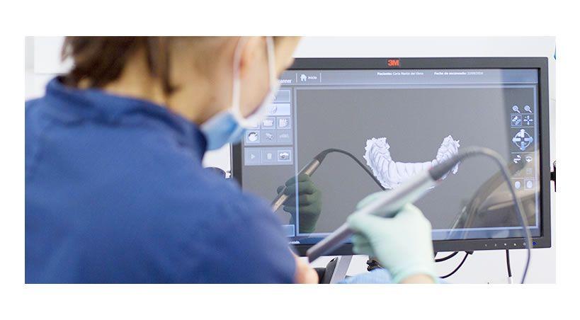 Comparativa escáner intraoral