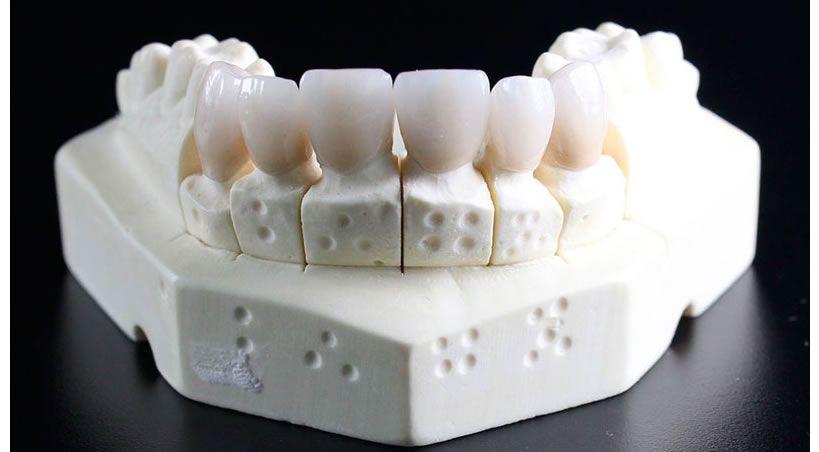 Biomateriales dentales: qué son y cómo han evolucionado