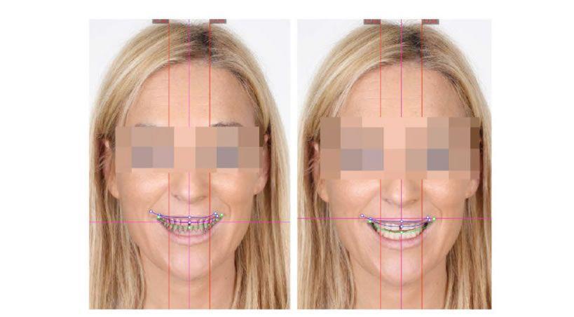 El impacto de la planificación digital de la sonrisa en Odontología