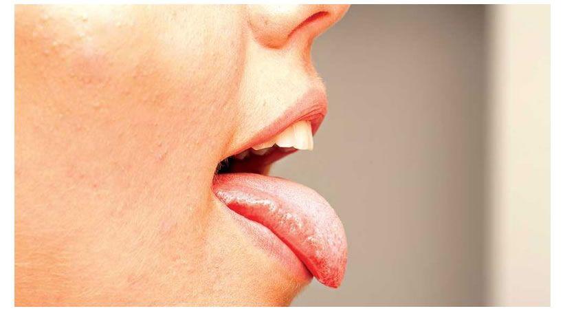 Pérdida de saliva afecta la salud bucal en menopausia