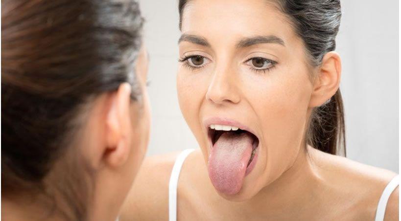Lo que tu lengua revela sobre tu salud
