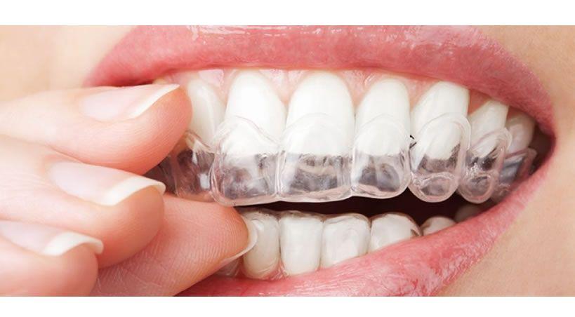 Un nuevo recubrimiento para alineadores dentales evita las bacterias