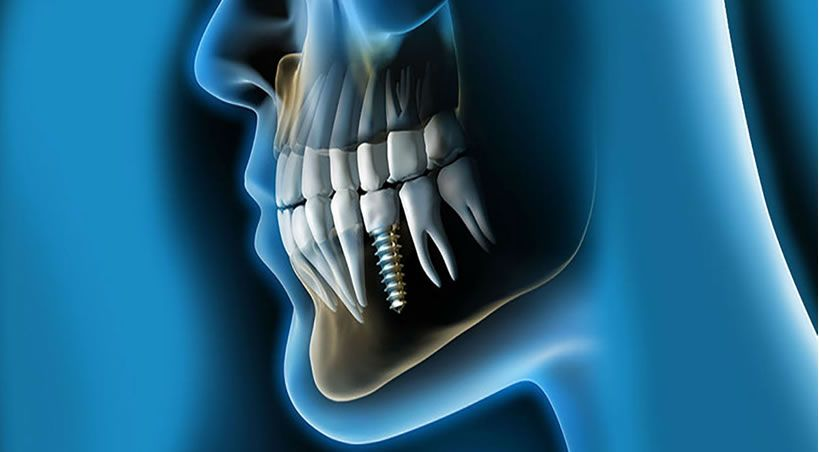 Los implantes dentales no son un lujo