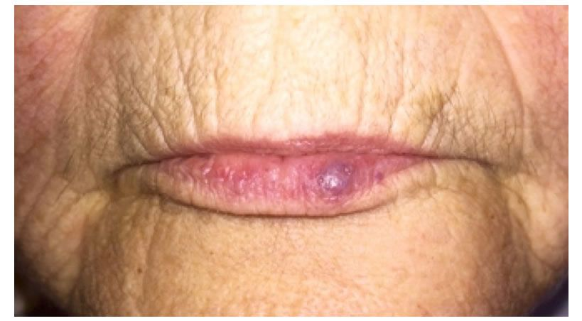 Tratamiento con láser de malformaciones vasculares del labio inferior