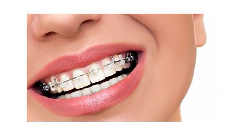 El dolor de la ortodoncia se calma con estos tips