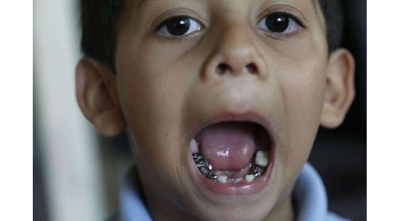 Descubren que es conveniente guardar los dientes de los niños
