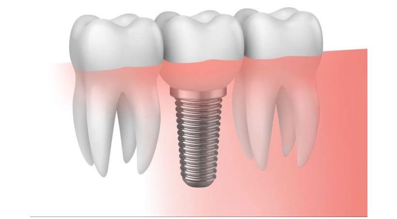 Implantes dentales, un avance de odontología moderna