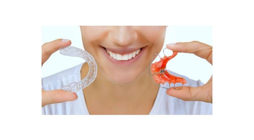 ¿Sabías que la retención es casi igual o más importante que el tratamiento de ortodoncia?