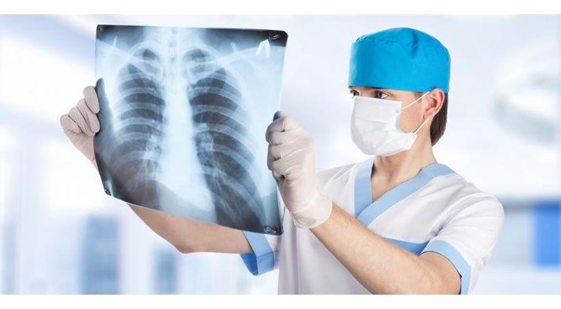 ¿Qué tan riesgosos son los rayos X para la salud?