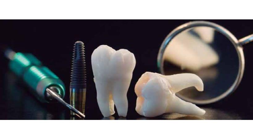 Complicaciones mas frecuentes de los implantes