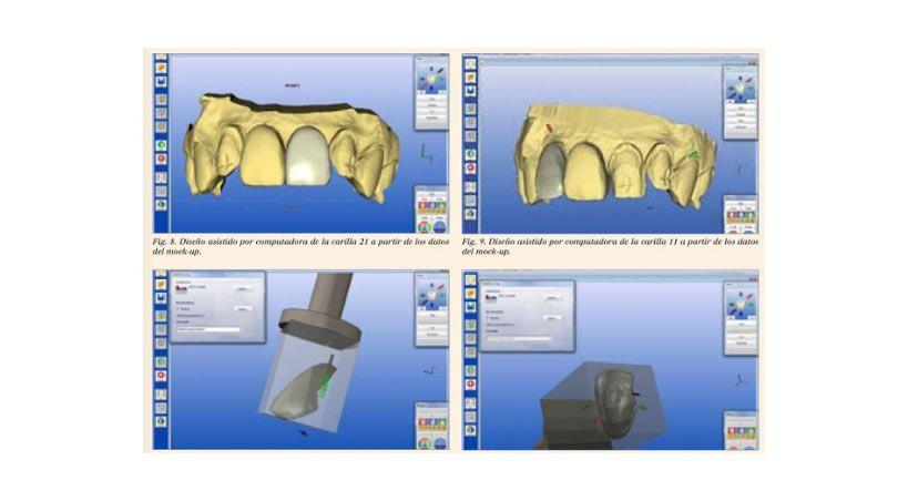 Rehabilitación de dientes anteriores con carillas CAD/CAM