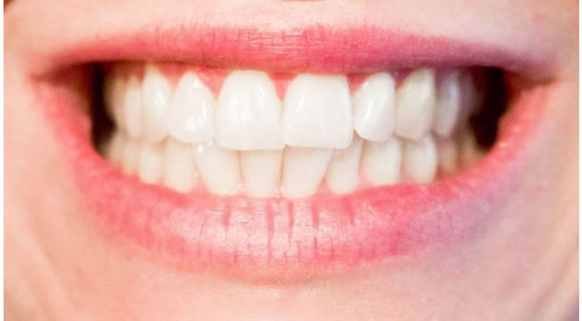 Estas nanopartículas pueden remineralizar nuestros dientes y huesos