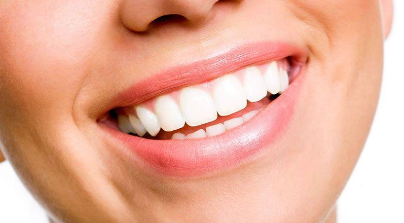 ¡No desgastes tu salud dental!