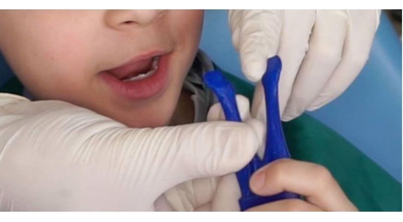 El aparato dental creado por un emprendimiento chileno que levantó US$1 millón en inversión en EEUU