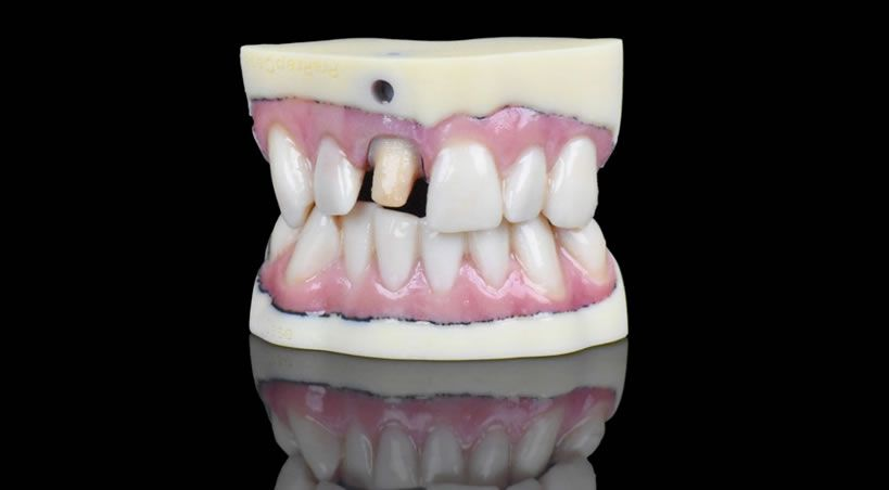 Llegan los implantes dentales 3D a todo color