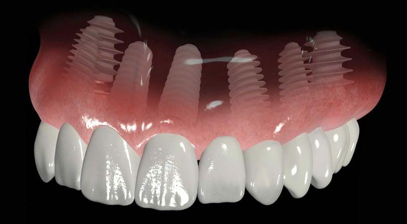 Los retos de la odontología latinoamericana y mundial