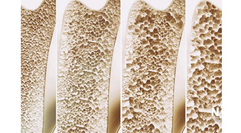 Crean medicamento inyectable que restaura huesos y ayuda a combatir la osteoporosis