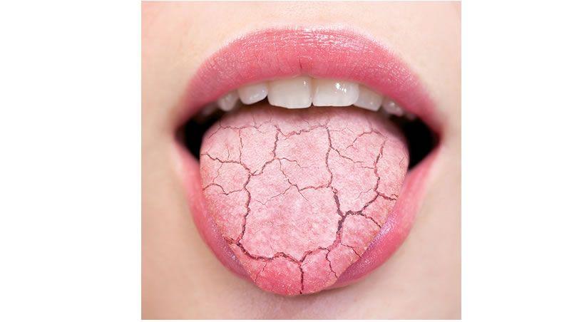 Cómo identificar a un paciente con boca seca