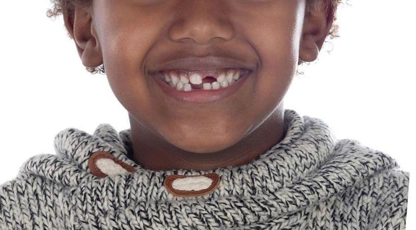 Advierten preocupante estado de salud oral en población infantil