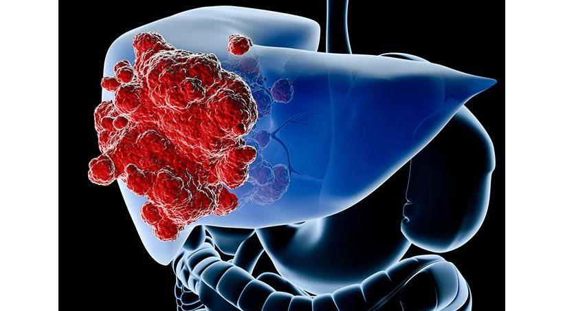De más del 75% el riesgo de cáncer lavándose mal los dientes