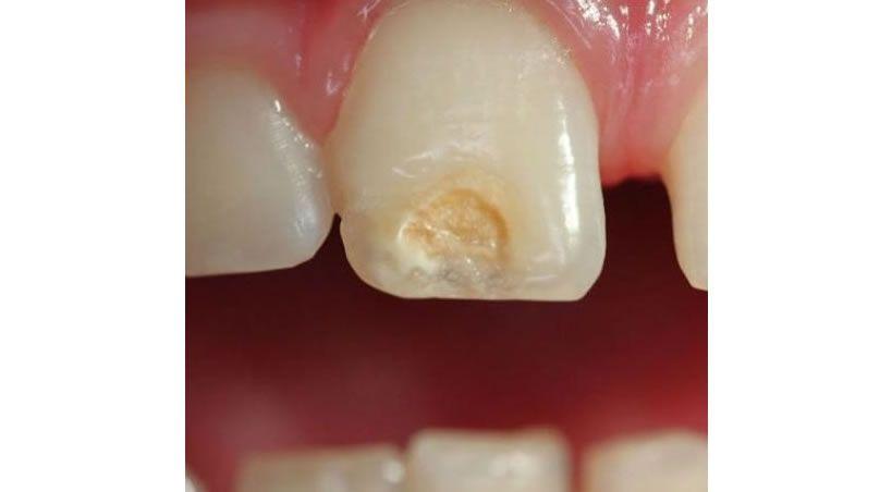Es así como médicos chinos hicieron crecer esmalte dental