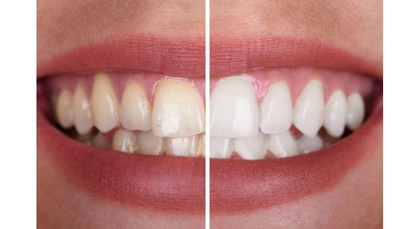 ¿Te cepillas con sal o bicarbonato para blanquear los dientes?