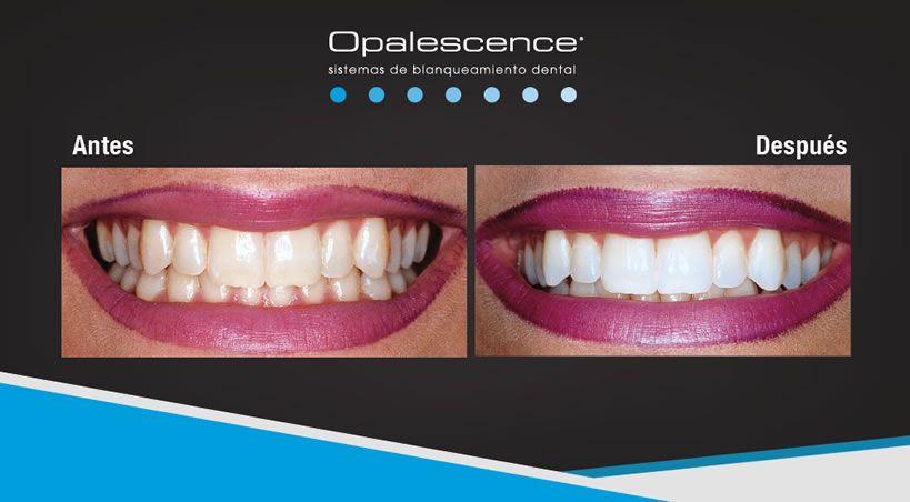 Cinco preguntas y respuestas sobre blanqueamiento dental