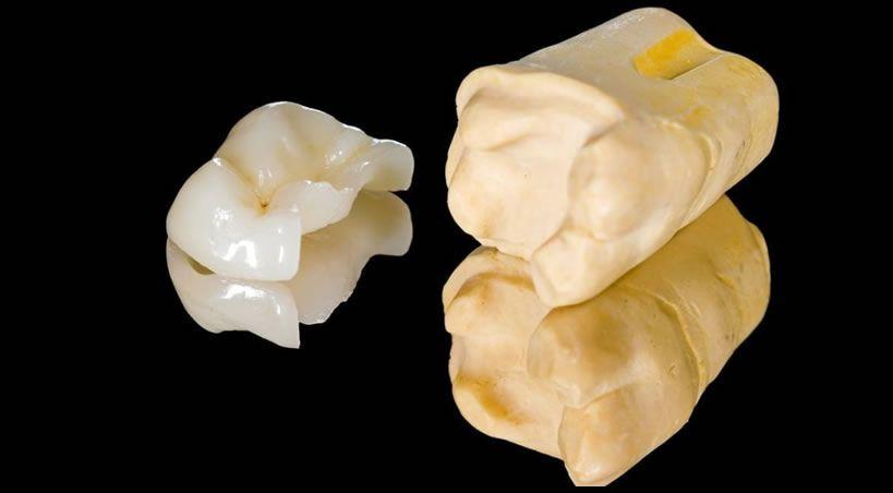 Incrustaciones dentales: ¿Qué son? Tipos y duración