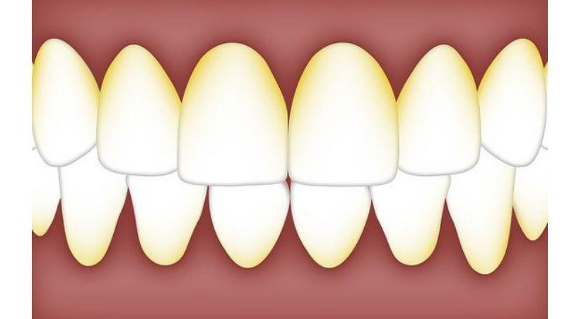 Infartos y neumonías por culpa de unos dientes insanos