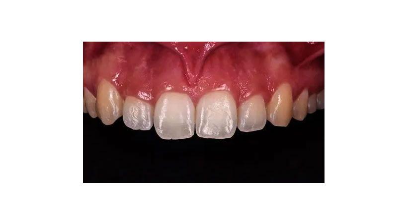 ¿Qué es la erupción pasiva alterada y cómo afecta la estética dental?