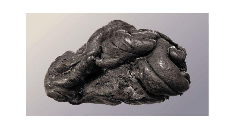 """Antigua """"goma de mascar"""" revela un microbioma de 5.700 años de antigüedad"""