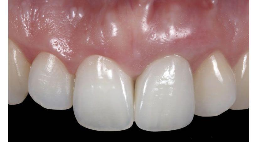 Implante inmediato en alveolo tipo II y posición apical del margen