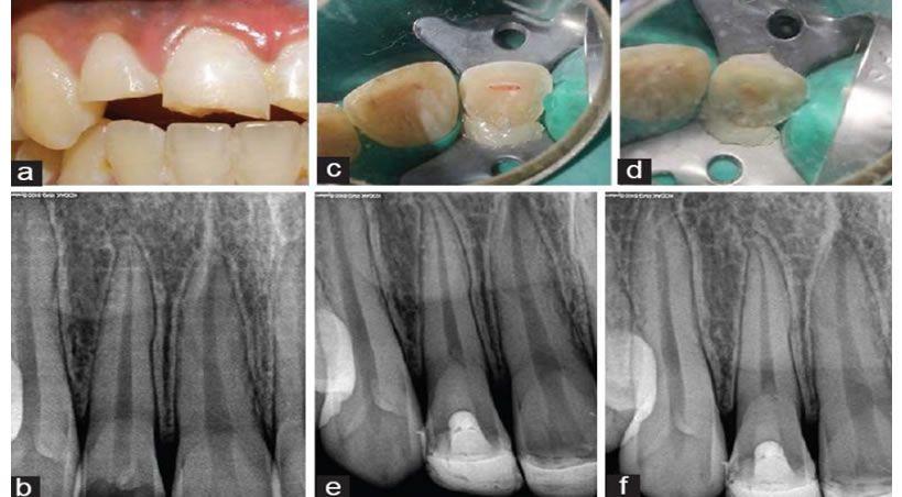 Biodentine: Sustituto dentinario restaurador, ¿será esta la solución?