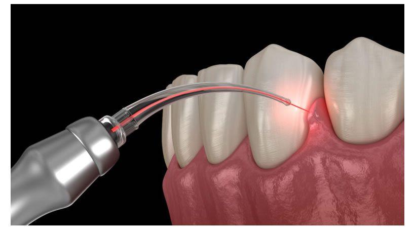 ¿Cuál Es El Primer Paso De Un Grupo Dental Para Realizar Una Inversión Sólida En Tecnología Láser?