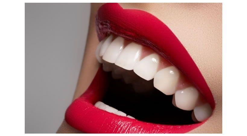 Resinas en odontología estética