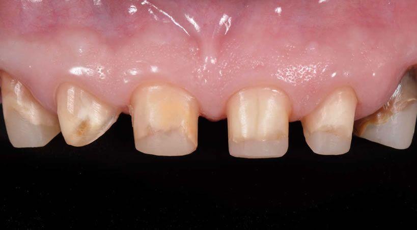 Erupción forzada en ortodoncia