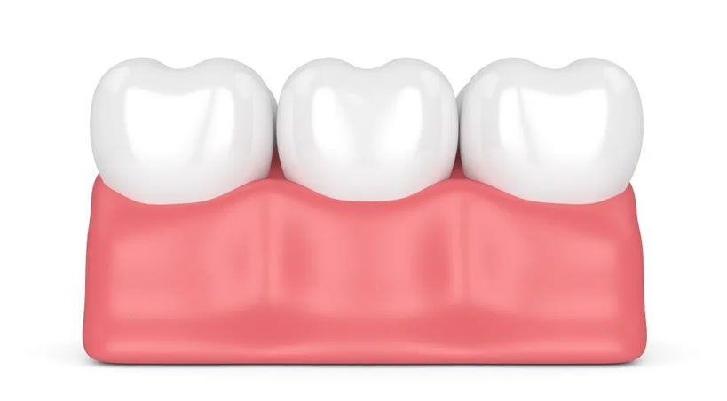 ¿Qué es el exceso de encía?, descripción y diferencias entre gingivectomía y alargamiento de corona