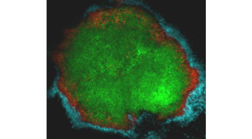 Las bacterias de las caries reúnen un ejército de microbios que las protegen en los dientes humanos